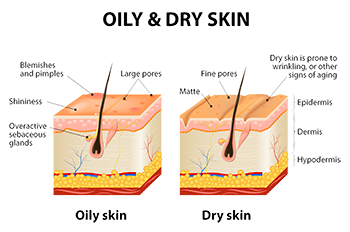 Oily-skin-vs-dry-skin-natural-oil